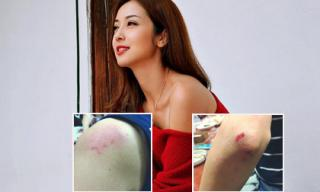 Fans xót xa trước hình ảnh bầm dập của Jennifer Phạm
