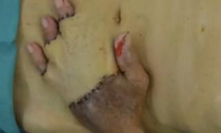Kỳ dị cụ ông phẫu thuật ghép bàn tay vào ổ bụng
