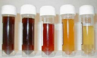 Màu sắc của nước tiểu tiết lộ tình trạng sức khỏe bạn