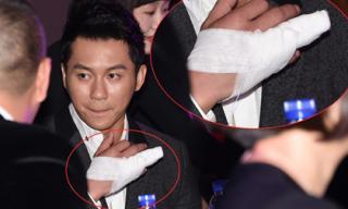 Lý Thần bất ngờ dự sự kiện với ngón tay bị băng bó