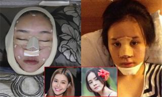 Loạt ảnh dao kéo của mỹ nhân Việt khiến fans rùng mình