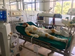 Vụ đốt cả nhà người tình kinh hoàng ở Sơn La: Hung thủ đã tử vong