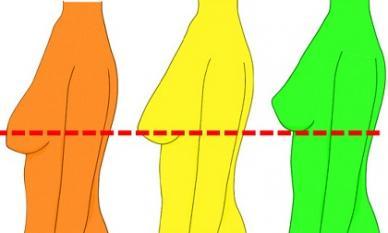 Cách giúp ngực căng tròn săn chắc, không còn chảy xệ cho các chị em sau khi giảm cân