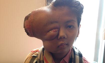 Thiếu nữ bị biến dạng mặt từ khối u bé bằng hạt đậu