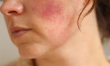 Cảnh báo nguy cơ tổn thương da cực kỳ nghiêm trọng nếu làm đẹp bằng công nghệ giả