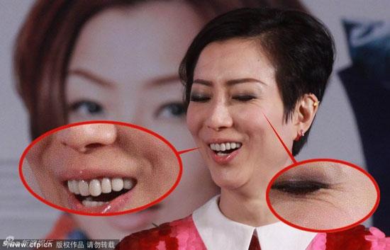 Trịnh Tú Văn,gương mặt đầy khiếm khuyết của Trịnh Tú Văn,lão hóa,diễn viên đa tài của điện ảnh Hồng Kông,sao Hoa ngữ xuống sắc