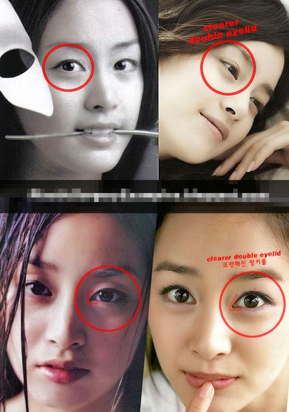Kim Tae Hee phẫu thuật thẩm mỹ