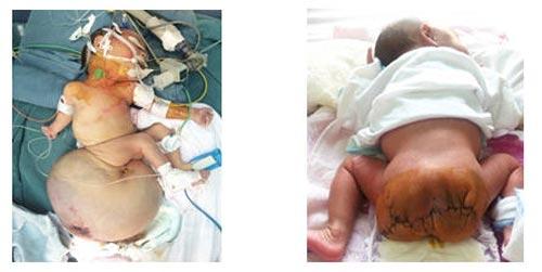 Khối u,khổng lồ,cắt khối u,nặng 2,6kg,trẻ sơ sinh,bệnh viện nhi Trung Ương