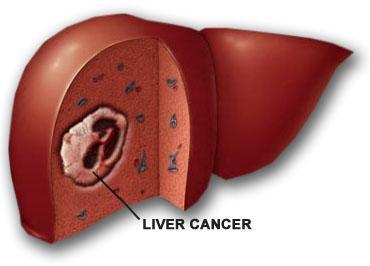 Ung thu gan,Xơ gan,Bệnh về gan,Ung thư phổi