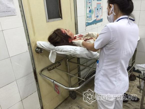 Á hậu Ái Châu,Ái Châu bị tai nạn xe hơi,Huỳnh Đông,hạn cuối năm của sao Việt