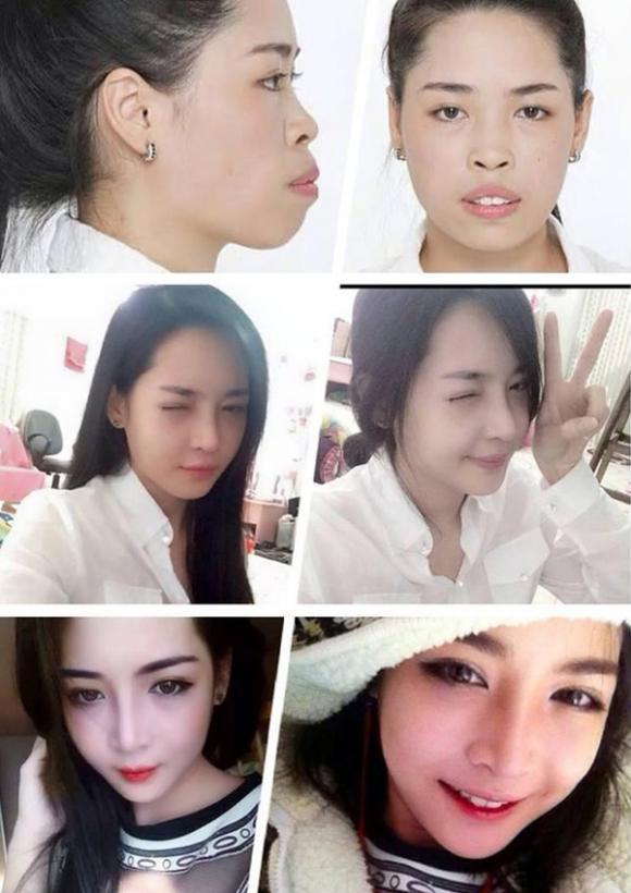 Thiếu nữ xinh đẹp, Lột xác nhờ phẫu thuật thẩm mỹ, Vân Tokyo, Linh Jollie