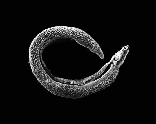 ký sinh trùng trên cơ thể người, Ấu trùng trên cơ thể người, Giun Guinea, Sán dây