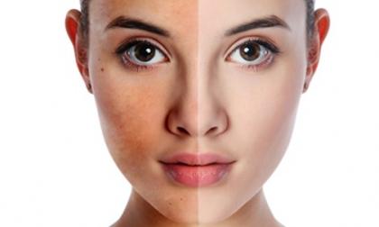 chăm sóc làn da theo từng độ tuổi,nét thanh xuân,bổ sung dưỡng chất cho da,chăm sóc da hàng ngày