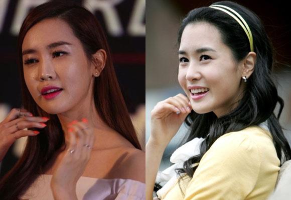 Lee Da Hae,Lee Da Hae lộ mặt cứng đờ,Lee Da Hae thẩm mỹ,Lee Da Hae khác lạ