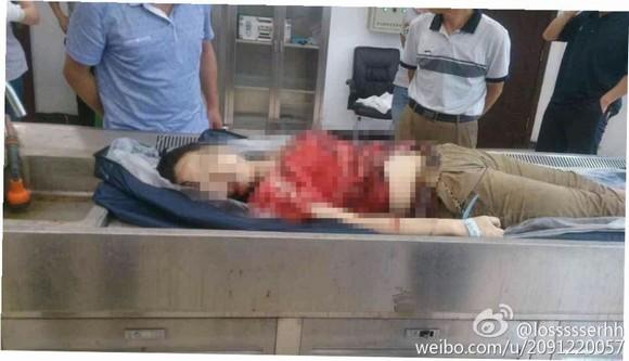 nữ sinh bị bạn trai đâm nhiều nhát ngay sân trường 3