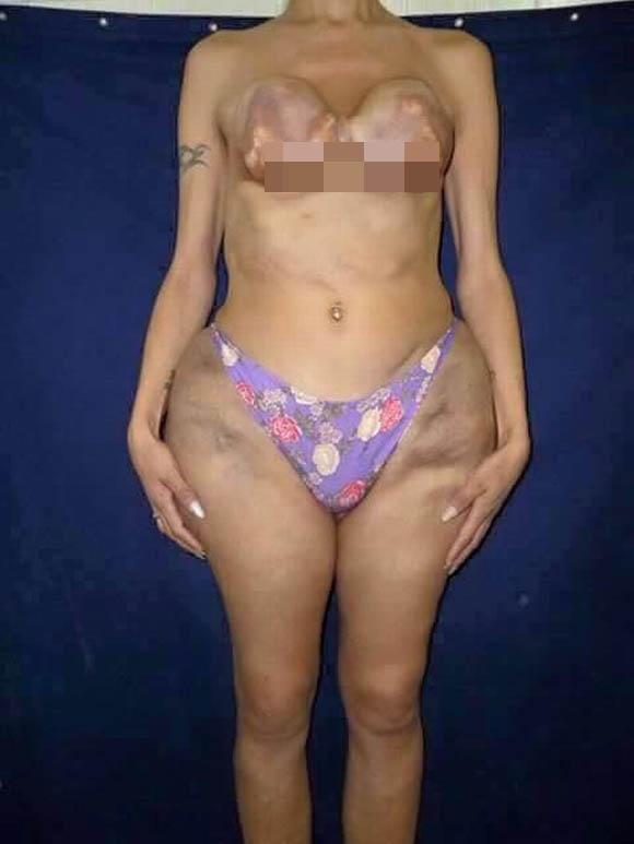 Cô gái bị hoại tử nghiêm trọng vì bơm silicone lỏng vào cơ thể