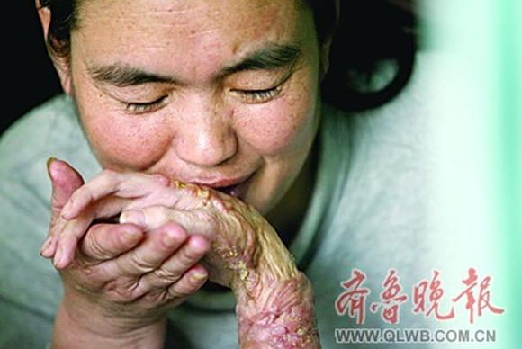 Cô gái bị đốt cháy toàn bộ bàn tay vì son dưỡng môi 0