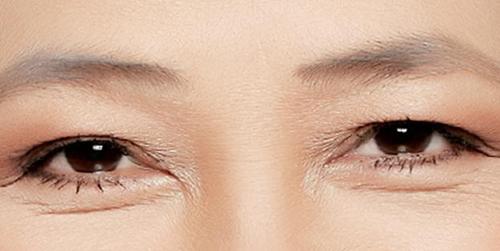 Mí mắt sụp, Lão hóa da, Nâng cơ, Căng da, BB Thanh Mai
