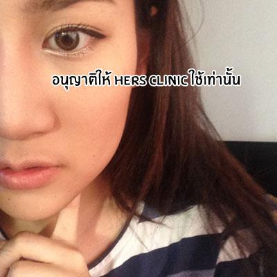 cắt thịt ở má,cô nàng Thái Lan cắt thịt ở má,phẫu thuật để có gương mặt thon gọn,cắt thịt ở má tại bệnh viện thẩm mỹ,Bangkok
