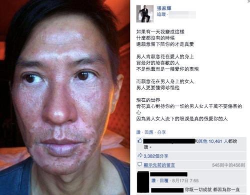<a target='_blank' href='https://www.phunuvagiadinh.vn/my-nam.topic'>Mỹ nam</a> TVB biến dạng gương mặt vì phơi nắng suốt 6 tiếng 6