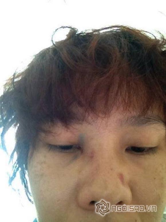 Dương Yến Ngọc bị chồng bạo hành đầy thương tích 3