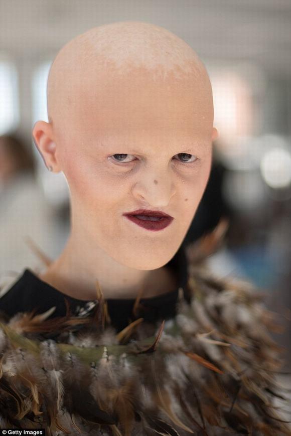 Người mẫu thành công nhờ có khuôn mặt dị dạng