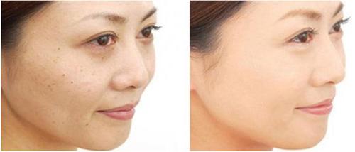 Thanh Hà beauty & Spa, Trị nám da, Trị nám da hiệu quả