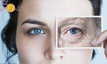 Trẻ hóa da, Trẻ hóa da không phẫu thuật, Solar spa