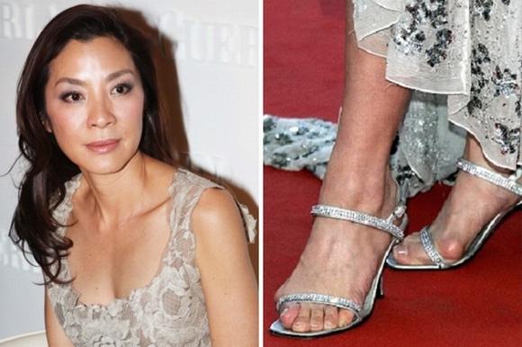 10 ngôi sao nổi tiếng thế giới có bàn chân xấu tệ 8