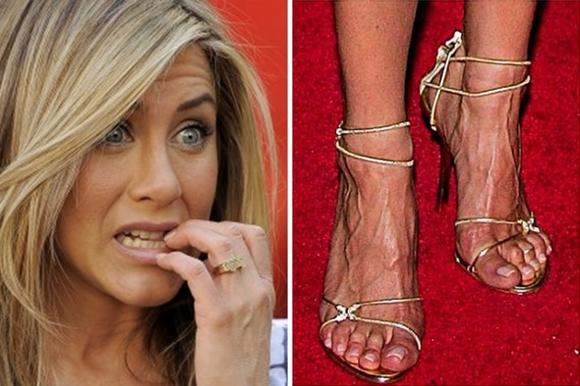 10 ngôi sao nổi tiếng thế giới có bàn chân xấu tệ 6