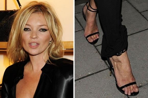 10 ngôi sao nổi tiếng thế giới có bàn chân xấu tệ 5