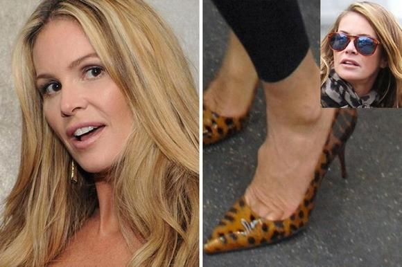 10 ngôi sao nổi tiếng thế giới có bàn chân xấu tệ 1