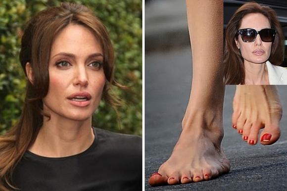 10 ngôi sao nổi tiếng thế giới có bàn chân xấu tệ 9