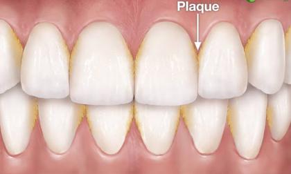 cao răng, sạch răng, vệ sinh răng miệng