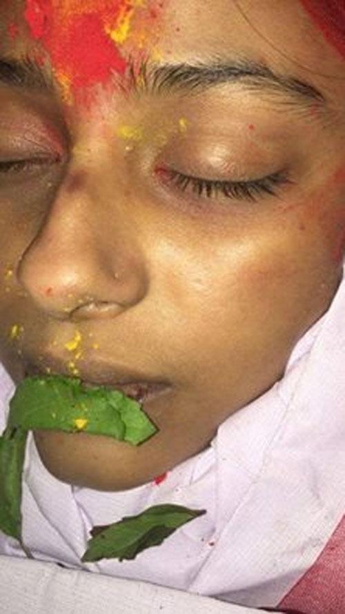 Cô dâu 8 tuổi,cô dâu 8 tuổi bị bầm tím,cô dâu 8 tuổi bị sát hại