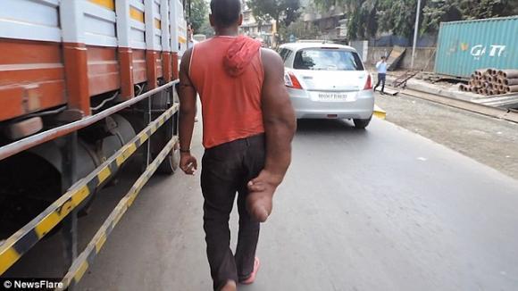 cánh tay khổng lồ nặng 20kg, cánh tay voi, kỳ lạ, đột biến gen