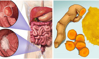 thanh độc gan, giải độc gan, chăm sóc sức khỏe, bệnh gan