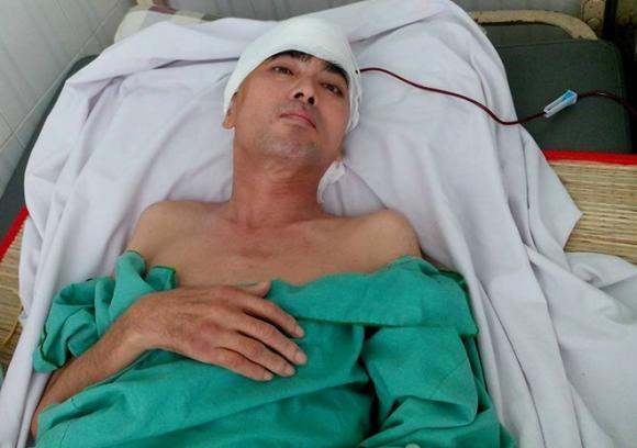 Diễn viên Nguyễn Hoàng ghép hộp sọ thành công