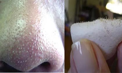 mụn đầu đen, màng bọc thực phẩm, đắp màng bọc thực phẩm lên mũi, màng bọc thực phẩm trị mụn