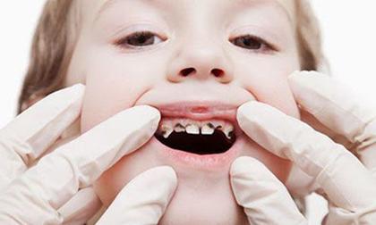 sâu răng ở trẻ, không nên thường xuyên hôn trẻ, lưu ý khi chăm sóc trẻ