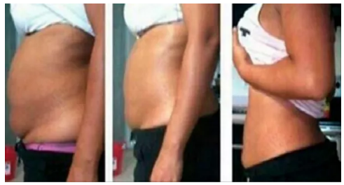 giảm mỡ bụng, cách giảm mỡ bụng, hỗn hợp giảm mỡ bụng, giảm mỡ bụng hiệu quả