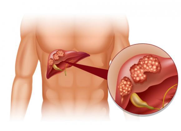 Một số biểu hiện của bệnh u gan và cách điều trị ung thư gan