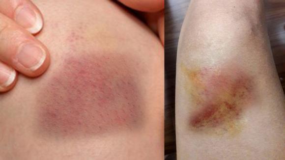 vết bầm tím trên da, cách chữa vết bầm tím trên da, 8 cách chữa vết bầm tím, bầm tím, sức khỏe