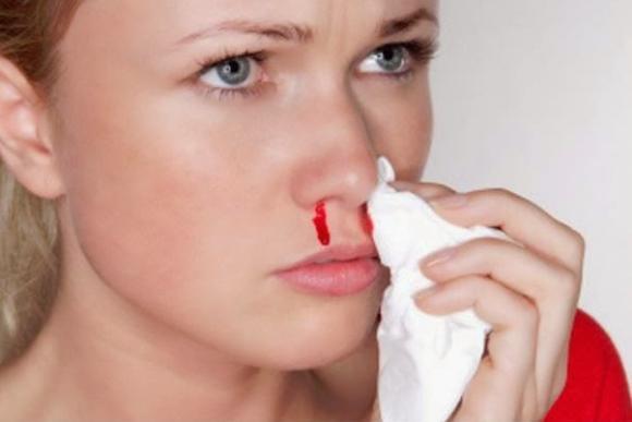 cháy máu cam, cách chữa chảy máu cam, điều trị chảy máu cam, sức khỏe