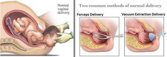 sinh thường, sinh mổ, so sánh sinh thường và sinh mổ, ưu điểm của sinh mổ, nhược điểm của sinh mổ, ưu điểm của sinh thường, nhược điểm của sinh thường, so sánh sinh thường và sinh mổ