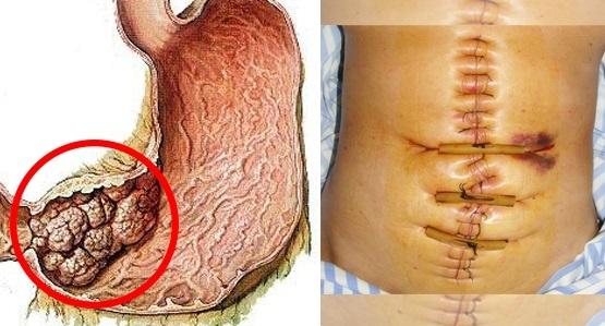 ung thư dạ dày, dấu hiệu ung thư dạ dày, 5 dấu hiệu nhận biết ung thư dạ dày, ung thư