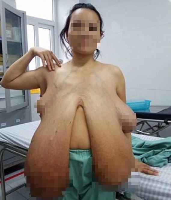 bộ ngực khổng lồ, Phẫu thuật bộ ngực khổng lồ, Người phụ nữ có bộ ngực khổng lồ