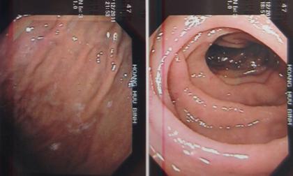 ung thư thực quản, ung thư,