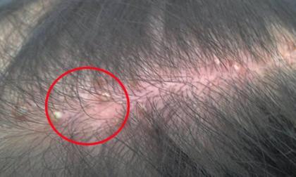 tóc dầu, tóc nhờn, cách khắc phục tóc dầu, chữa trị tóc dầu,