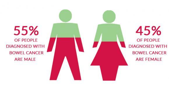ung thư, ung thư ruột, nguy cơ mắc ung thư ruột gấp 4 lần, ung thư đại trực tràng